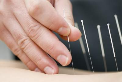 acupunctureresize